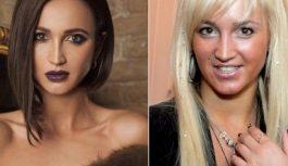 Косметолог рассказала, что «переделала» в себе Ольга Бузова