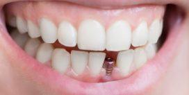 Ваш путь к здоровым зубам и деснам