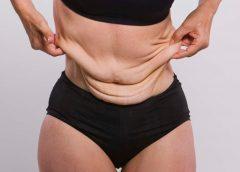 Дряблый живот после похудения – что делать?